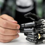E-dermis allows touch sensation and bionic hand pain